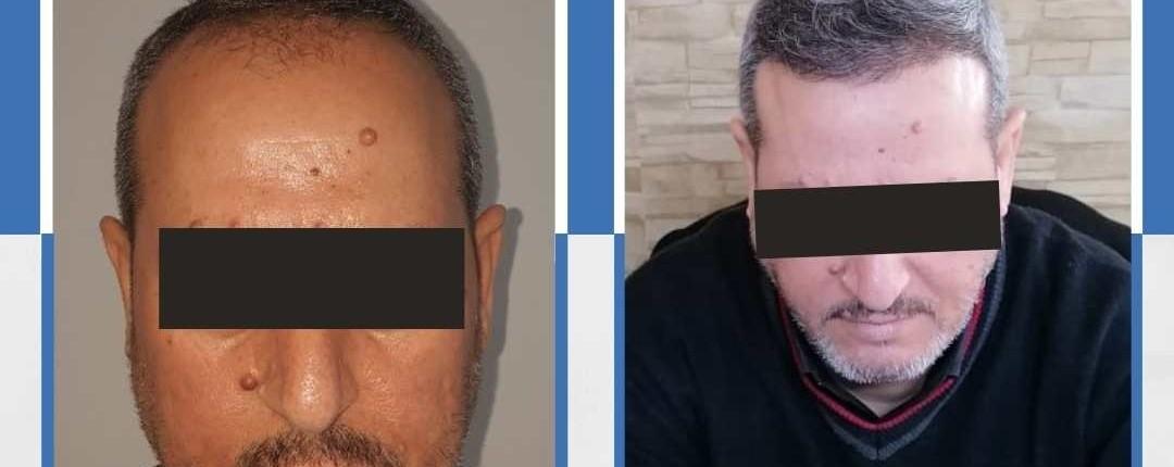 Före och efter bilder hårtransplantation 19