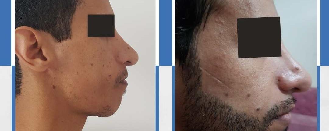 Före och efter bilder hårtransplantation 17