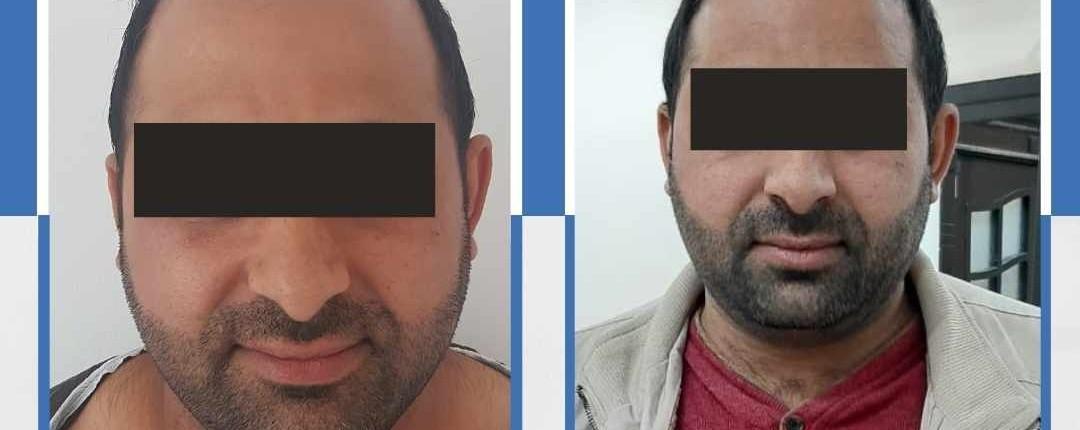 Före och efter bilder hårtransplantation 15