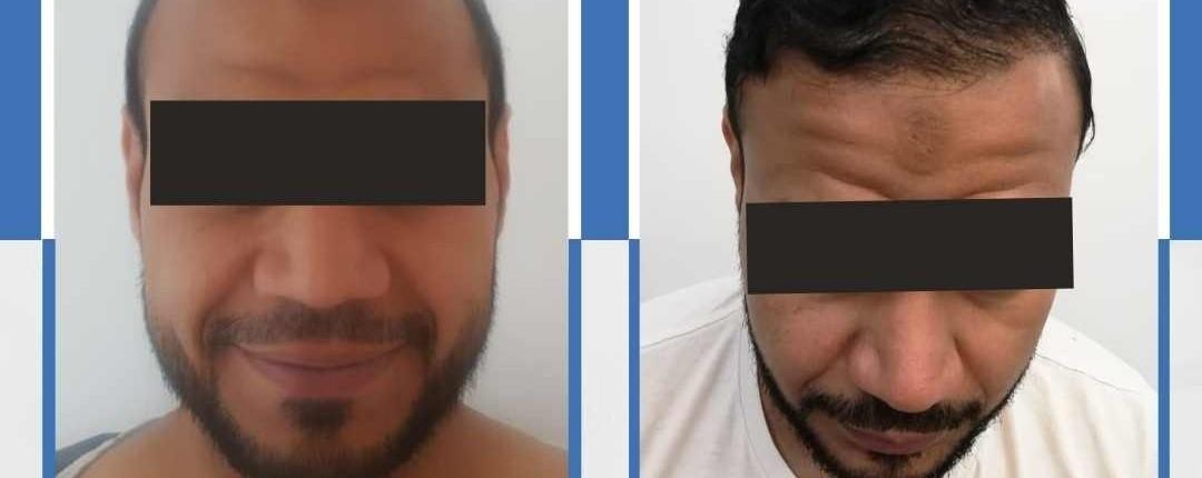 Före och efter bilder hårtransplantation 14