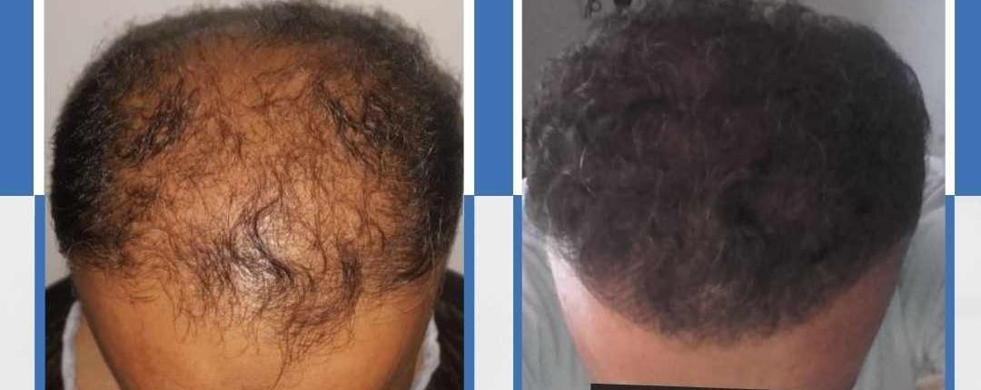 Före och efter bilder hårtransplantation 27