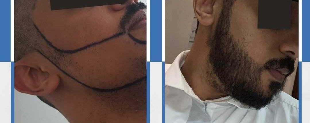 Före och efter bilder hårtransplantation 28