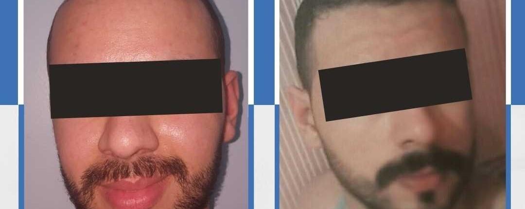Före och efter bilder hårtransplantation 29