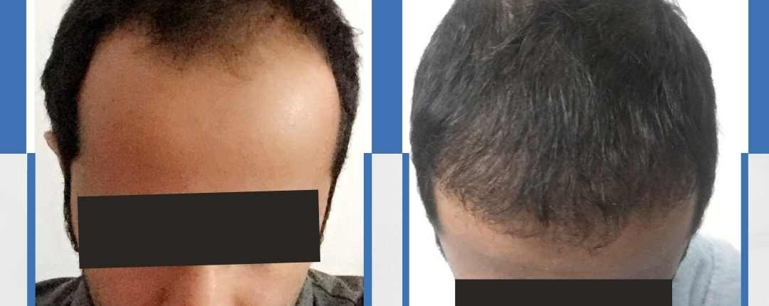 Före och efter bilder hårtransplantation 6