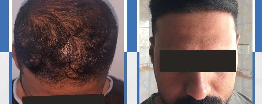 Före och efter bilder hårtransplantation 7