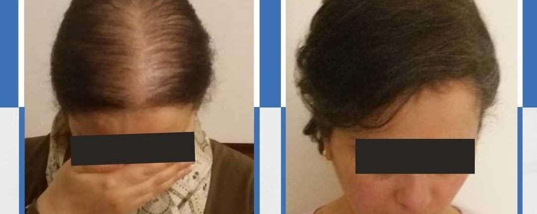 Före och efter bilder hårtransplantation 8