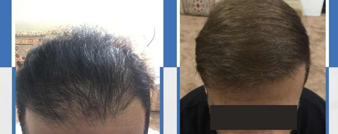Före och efter bilder hårtransplantation 10