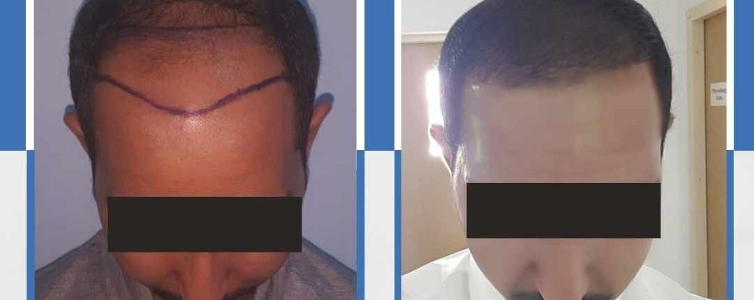 Före och efter bilder hårtransplantation 11