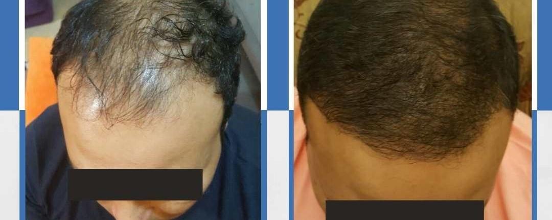 Före och efter bilder hårtransplantation 16