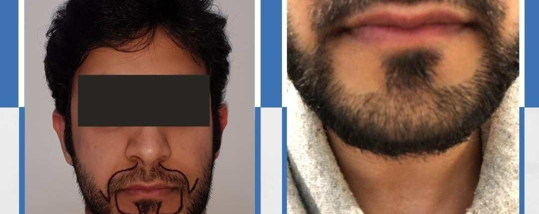 Före och efter bilder hårtransplantation 31