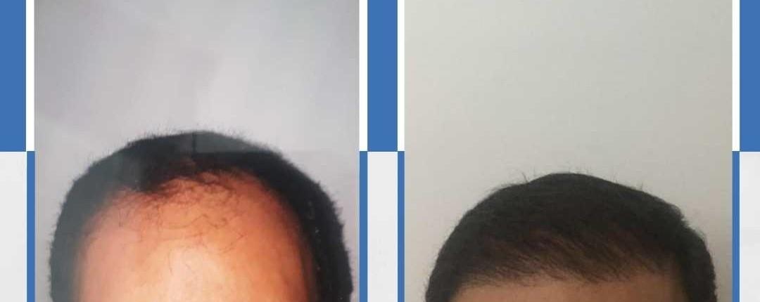 Före och efter bilder hårtransplantation 32