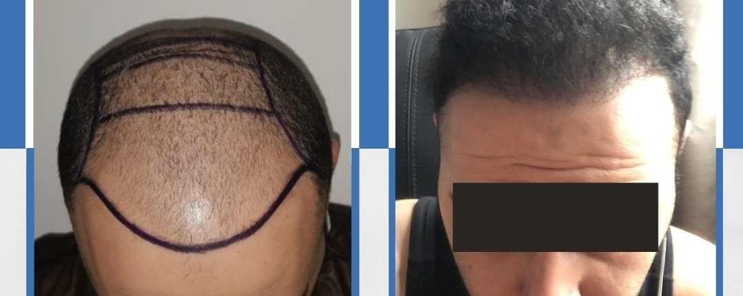Före och efter bilder hårtransplantation 26
