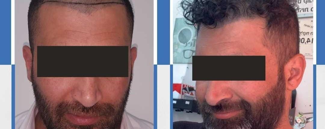 Före och efter bilder hårtransplantation 5