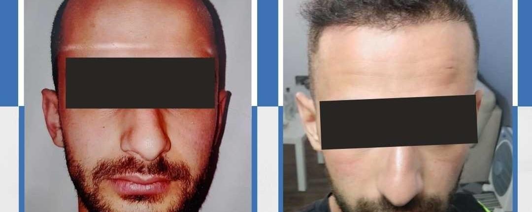 Före och efter bilder hårtransplantation 4