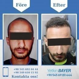 Hårtransplantation i Turkiet, Istanbul 8