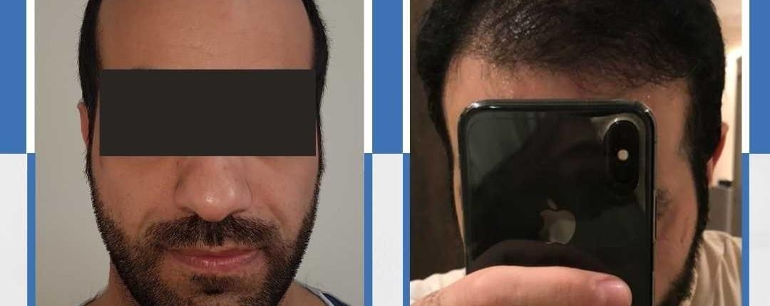 Före och efter bilder hårtransplantation 3
