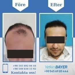 hårtransplantation före och efter bilder