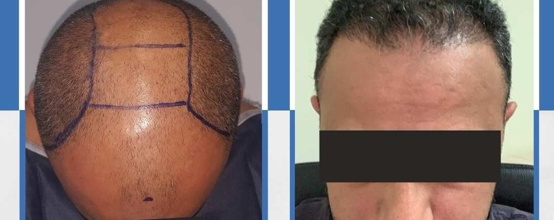 Före och efter bilder hårtransplantation 1