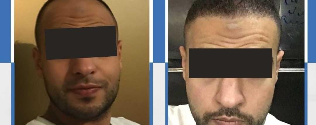 Före och efter bilder hårtransplantation 2