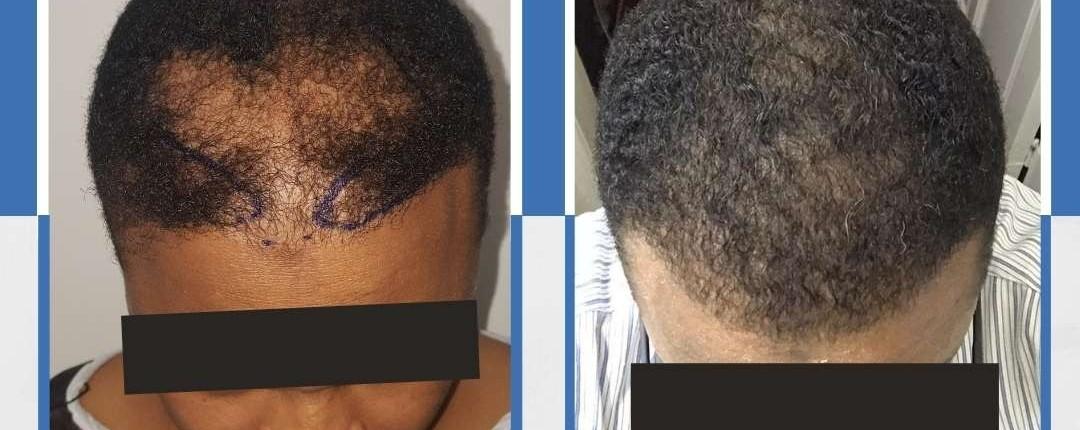 Före och efter bilder hårtransplantation 25