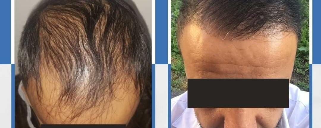 Före och efter bilder hårtransplantation 24