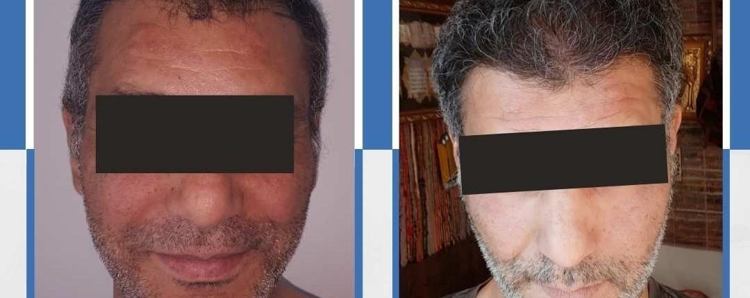 Före och efter bilder hårtransplantation 23
