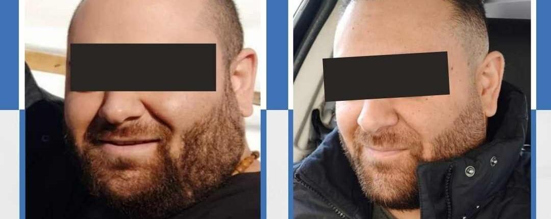 Före och efter bilder hårtransplantation 22