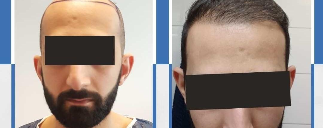 Före och efter bilder hårtransplantation 21