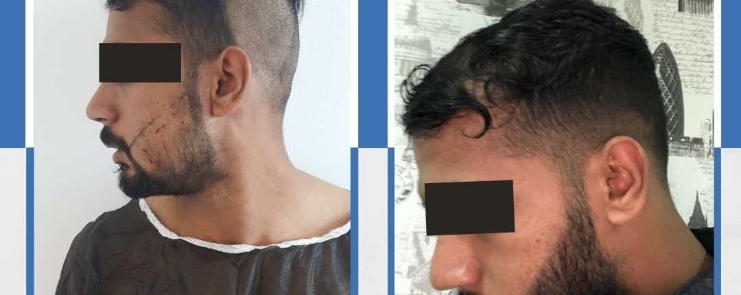 Före och efter bilder hårtransplantation 20