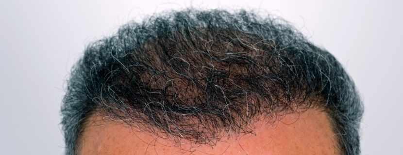 Saç Ekimi Öncesi Saçlar Kesilir Mi_