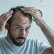 A che età si perdono i capelli_