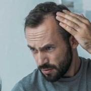 La perdita di capelli da stress