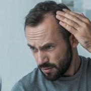 12 miti da sfatare sul trapianto di capelli