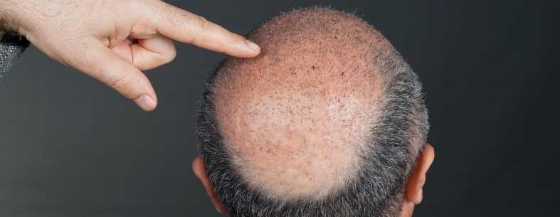 7 motivi per un trapianto capelli non riuscito