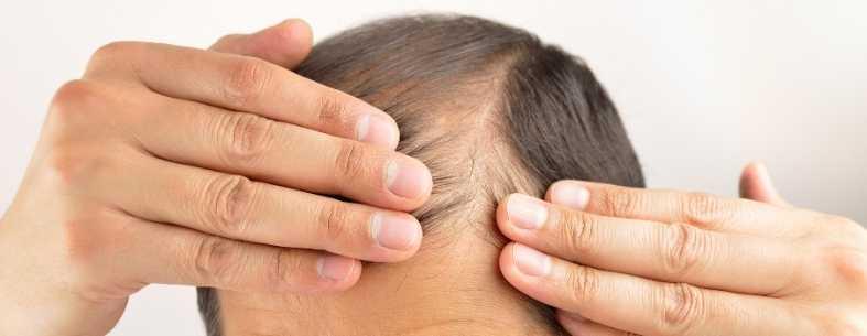 Cosa fare prima del trapianto di capelli_