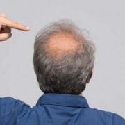 Cosa influenza nel trapianto capelli il costo_