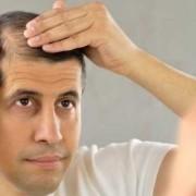 Gli alimenti contro la caduta dei capelli