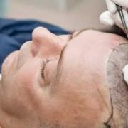 I rischi del trapianto di capelli