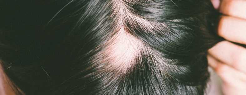 Il Finasteride per capelli