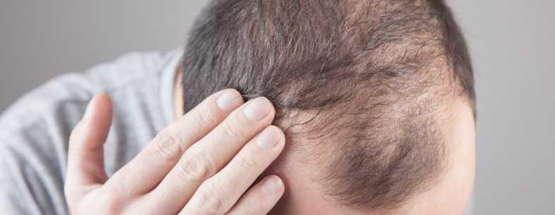 Il Minoxidil per capelli