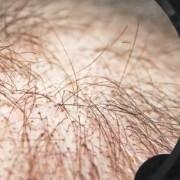 Il diradamento dei capelli