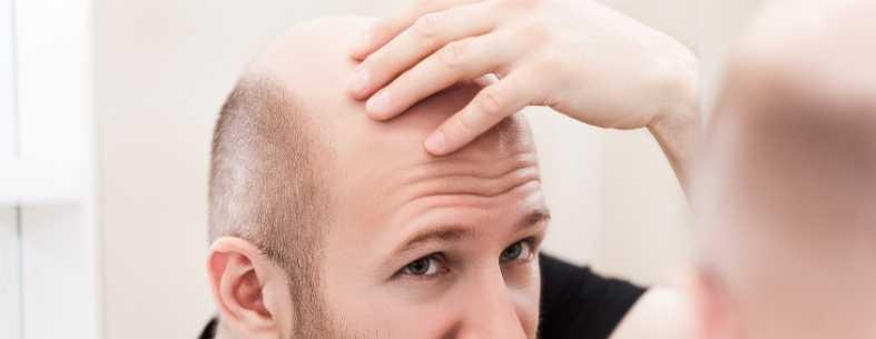 Il miglior trapianto capelli_ come scegliere_
