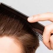 Il periodo post trapianto di capelli