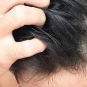 Il prurito dopo il trapianto di capelli