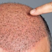 Il rossore post trapianto di capelli è normale_
