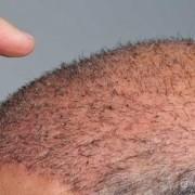 Il sudore e trapianto di capelli