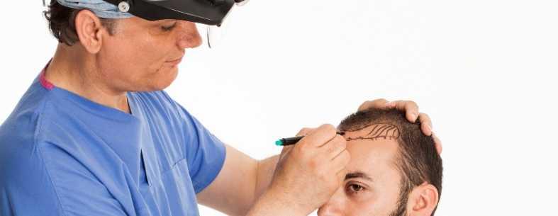 Il trapianto capelli in Turchia