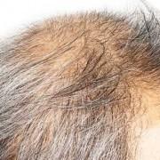 Il trapianto di capelli bianchi