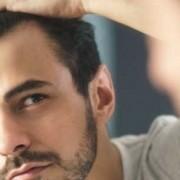 Il trapianto di capelli dopo un mese_ cosa succede_