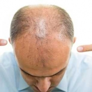 Il trapianto di capelli è doloroso_